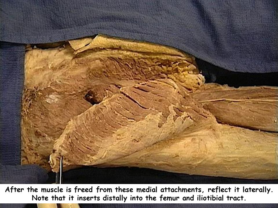 After the muscle is freed from these medial attachments, reflect it laterally.