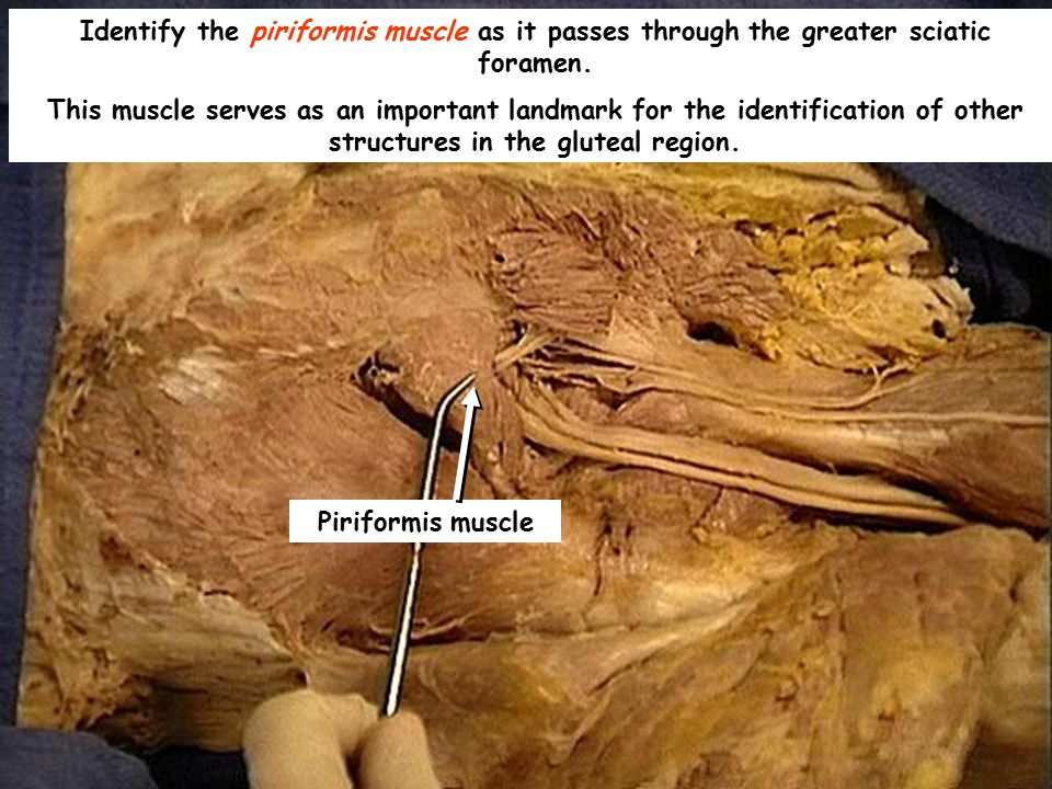 Identify the piriformis muscle as it passes through the greater sciatic foramen.