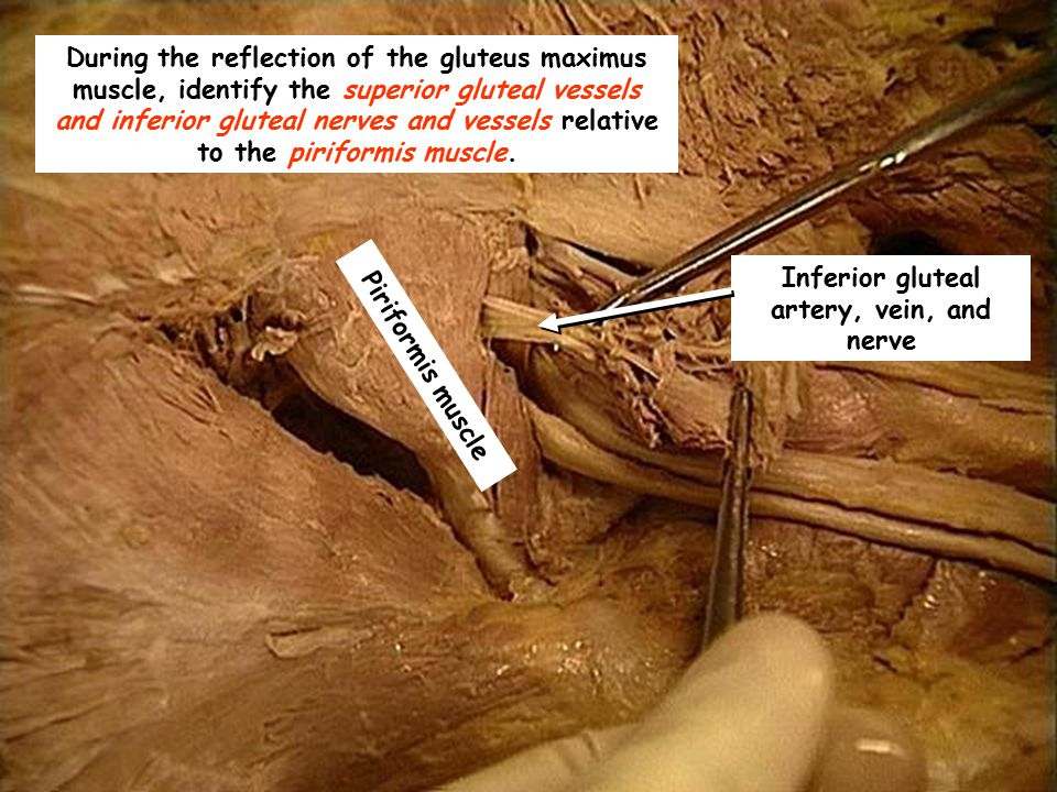 Inferior gluteal artery, vein, and nerve