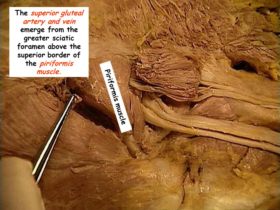 The superior gluteal artery and vein emerge from the greater sciatic foramen above the superior border of the piriformis muscle.