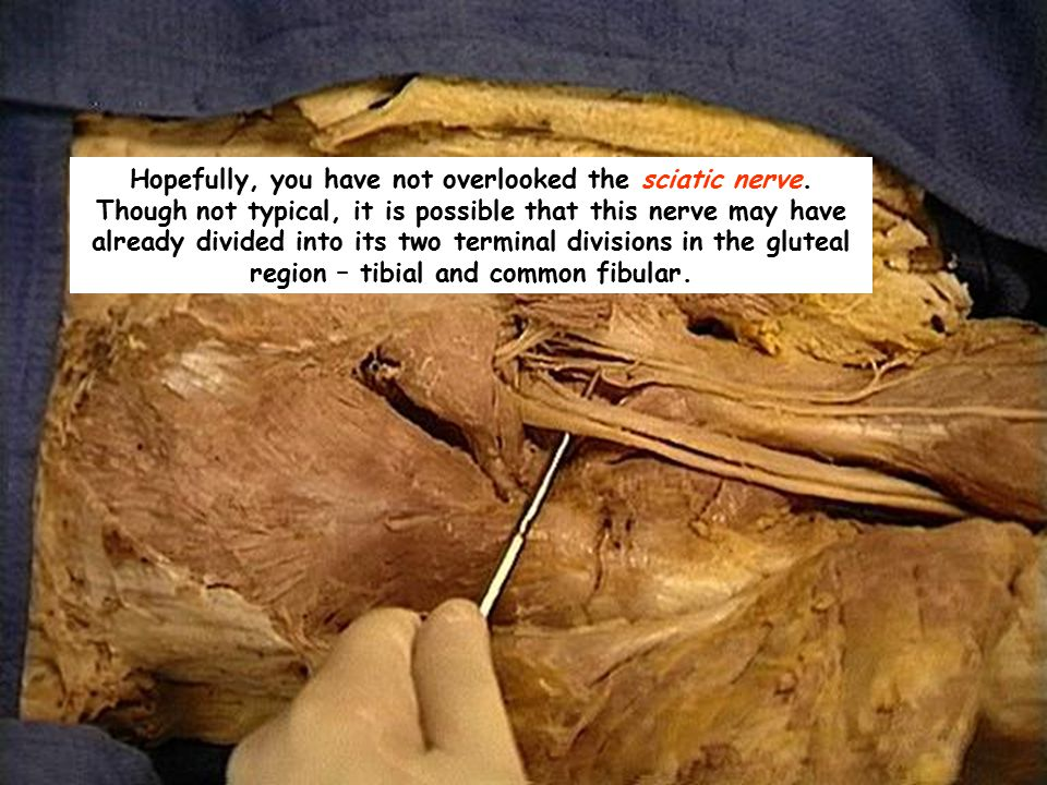 Hopefully, you have not overlooked the sciatic nerve