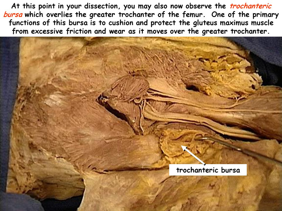 At this point in your dissection, you may also now observe the trochanteric bursa which overlies the greater trochanter of the femur. One of the primary functions of this bursa is to cushion and protect the gluteus maximus muscle from excessive friction and wear as it moves over the greater trochanter.