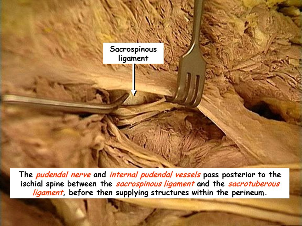 dissection of the gluteal region ppt video online download