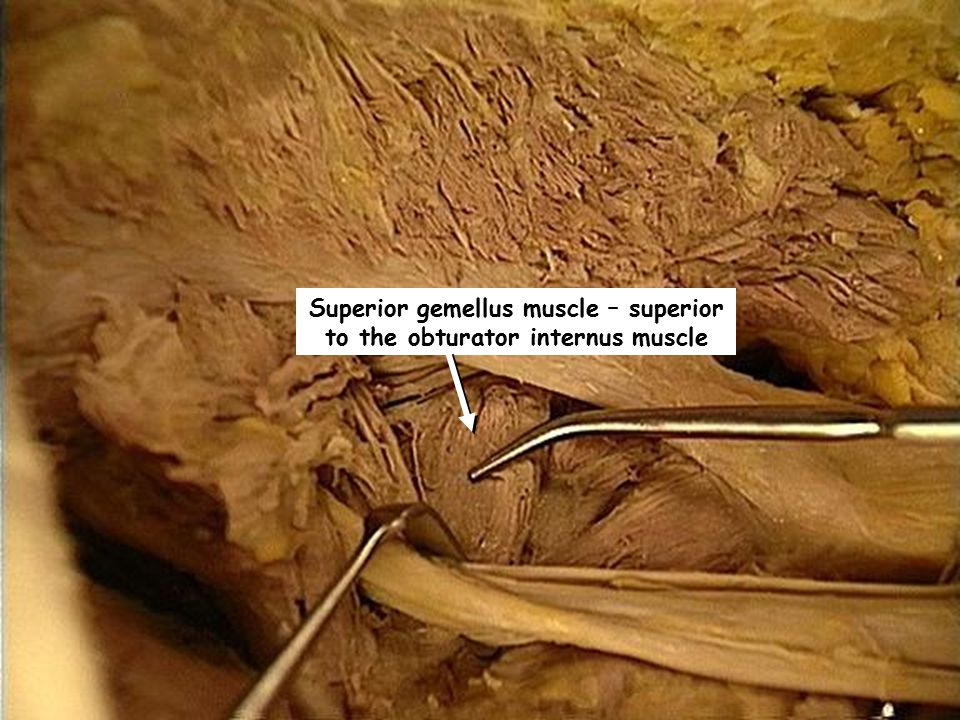 Superior gemellus muscle – superior to the obturator internus muscle
