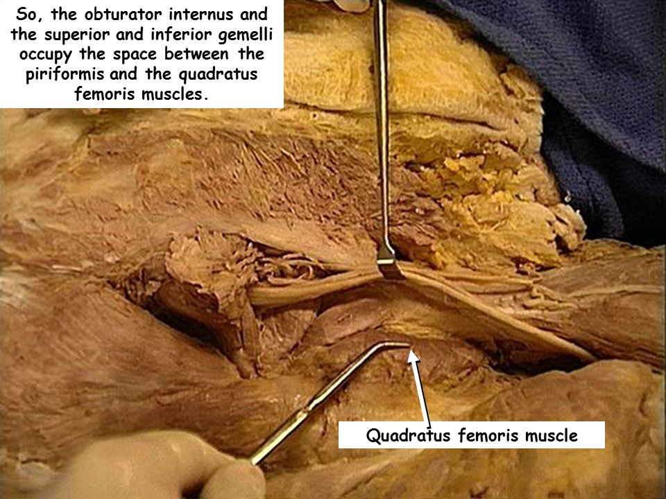 Quadratus femoris muscle