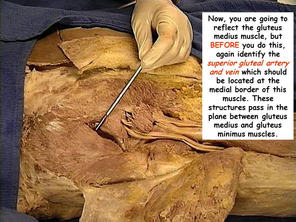 Now, you are going to reflect the gluteus medius muscle, but BEFORE you do this, again identify the superior gluteal artery and vein which should be located at the medial border of this muscle.