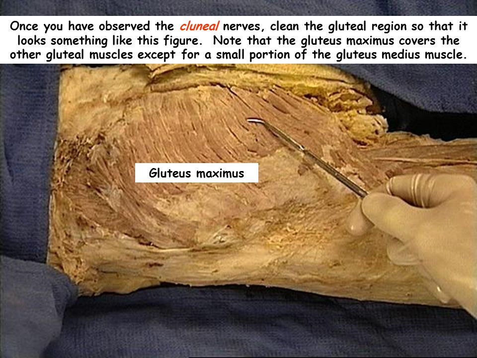 Once you have observed the cluneal nerves, clean the gluteal region so that it looks something like this figure. Note that the gluteus maximus covers the other gluteal muscles except for a small portion of the gluteus medius muscle.