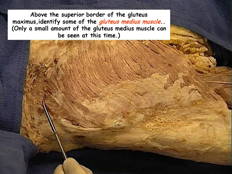 Above the superior border of the gluteus maximus,identify some of the gluteus medius muscle..