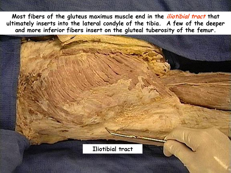 Most fibers of the gluteus maximus muscle end in the iliotibial tract that ultimately inserts into the lateral condyle of the tibia. A few of the deeper and more inferior fibers insert on the gluteal tuberosity of the femur.