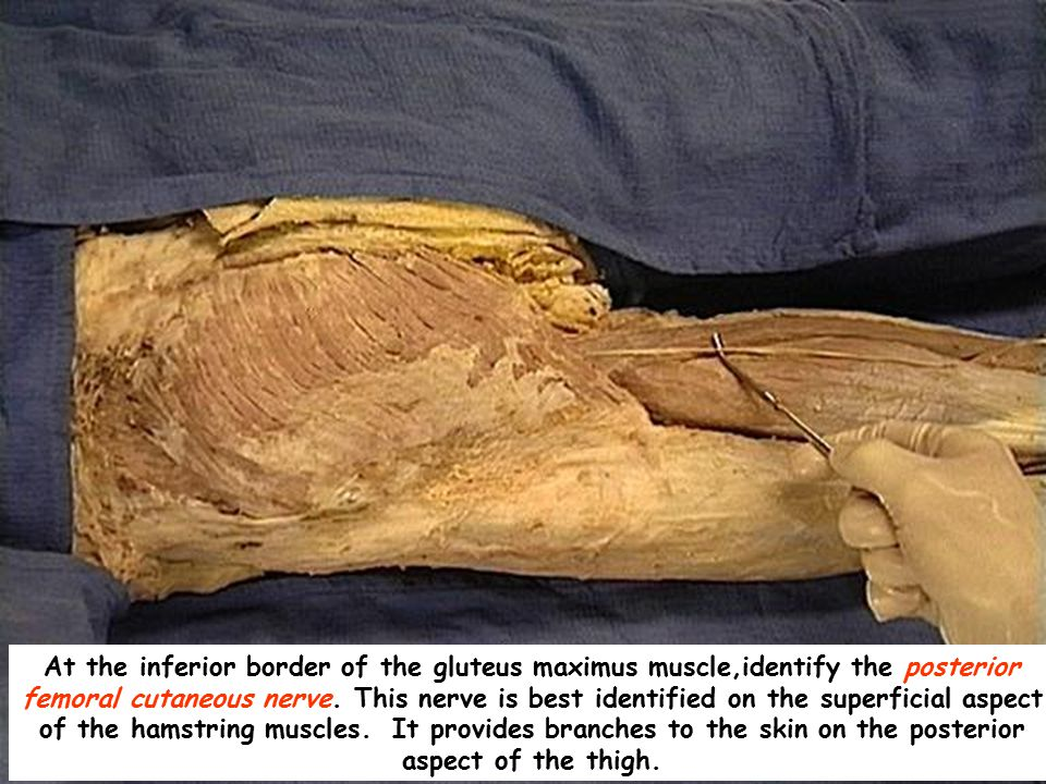 At the inferior border of the gluteus maximus muscle,identify the posterior femoral cutaneous nerve.