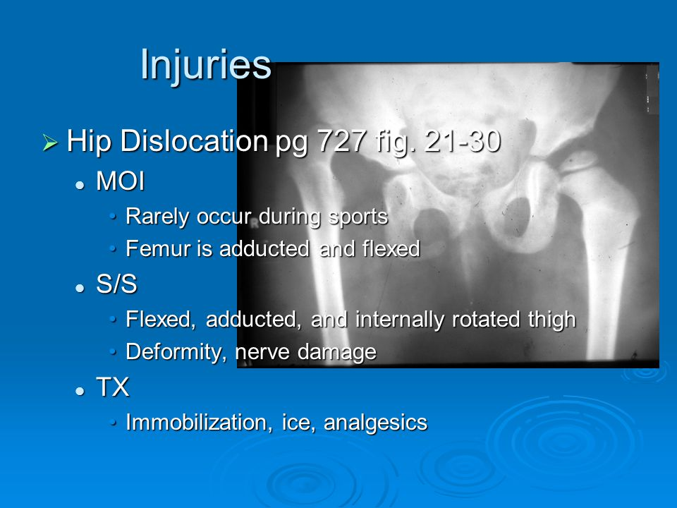 Injuries Hip Dislocation pg 727 fig. 21-30 MOI S/S TX