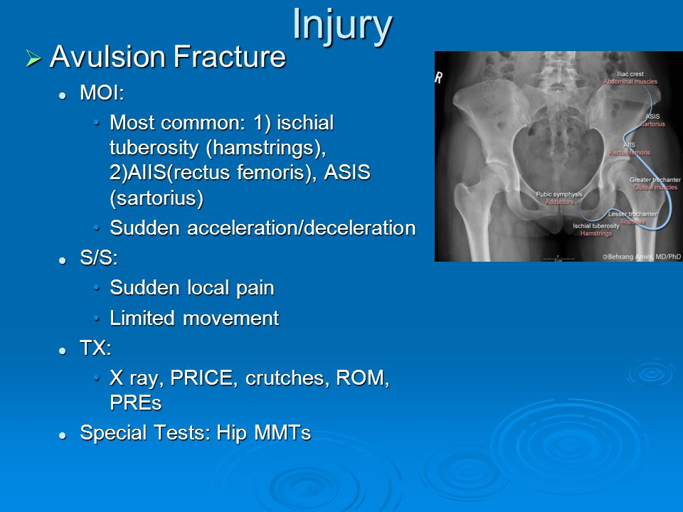 Injury Avulsion Fracture MOI: