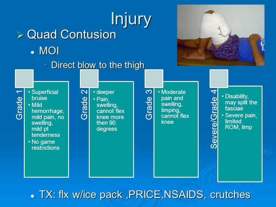 Injury Quad Contusion MOI TX: flx w/ice pack ,PRICE,NSAIDS, crutches