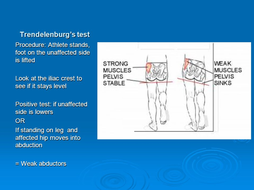 Trendelenburg's test Procedure: Athlete stands, foot on the unaffected side is lifted. Look at the iliac crest to see if it stays level.