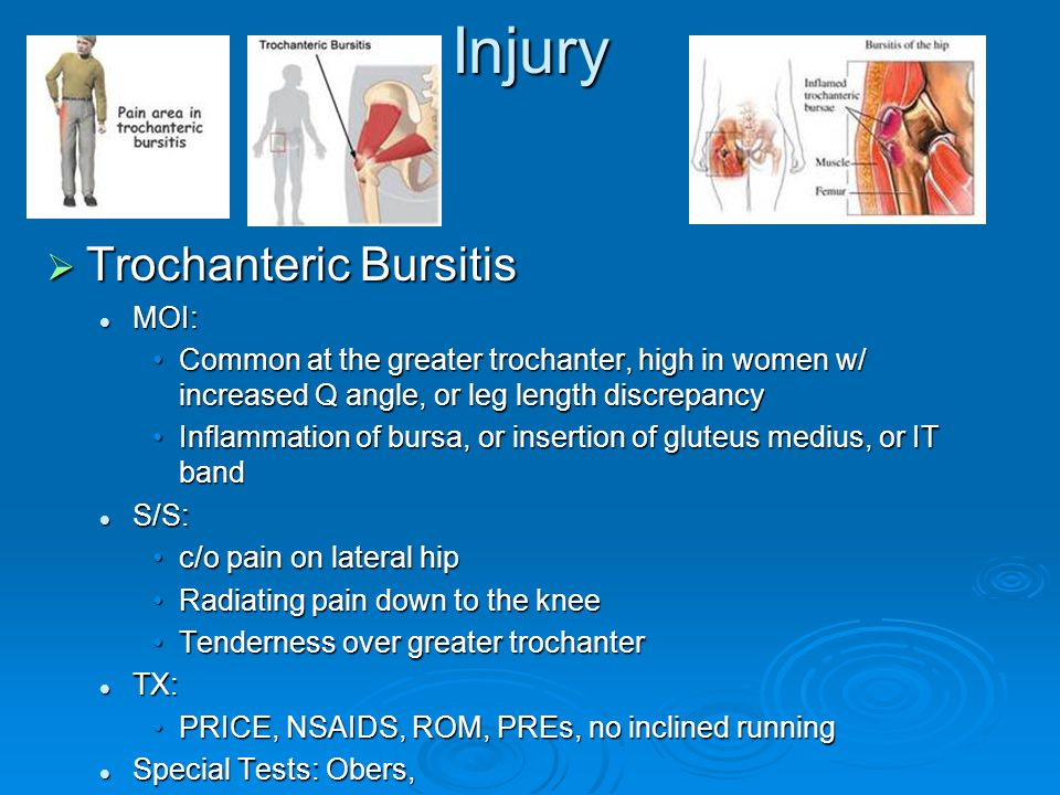 Injury Trochanteric Bursitis MOI: