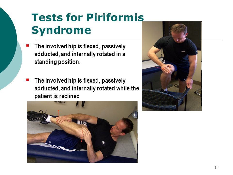 Tests for Piriformis Syndrome