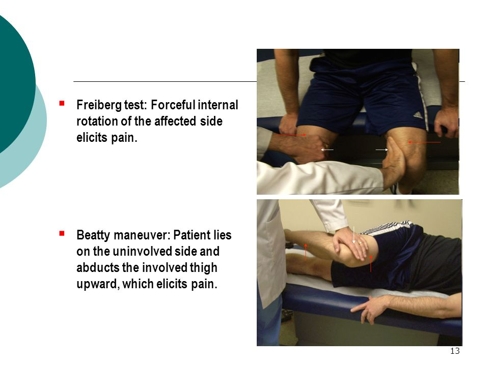 Freiberg test: Forceful internal rotation of the affected side elicits pain.