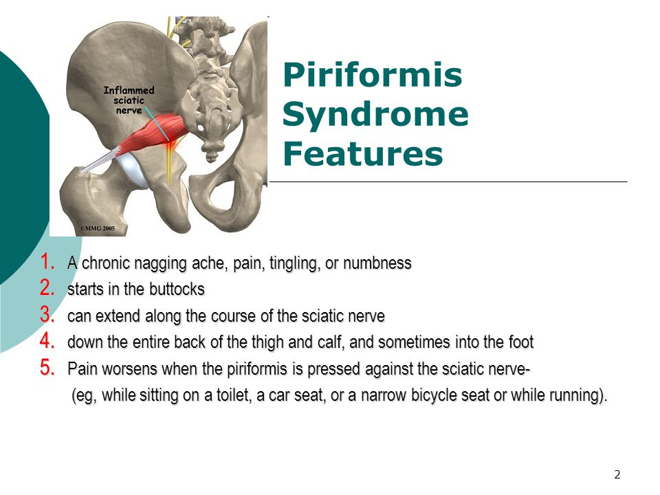 Piriformis Syndrome Features