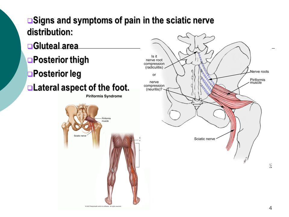 Signs and symptoms of pain in the sciatic nerve distribution: