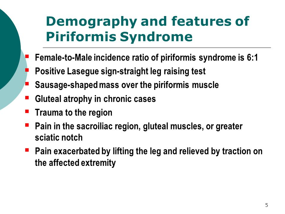 Demography and features of Piriformis Syndrome