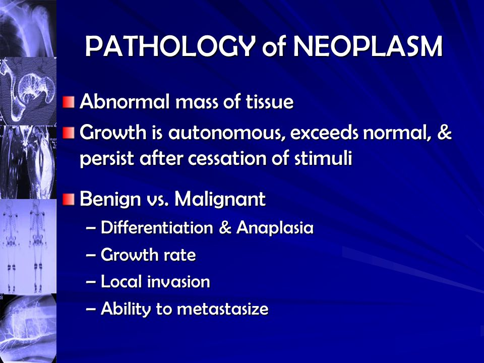 PATHOLOGY of NEOPLASM Abnormal mass of tissue