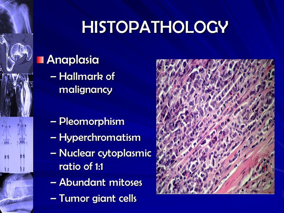 HISTOPATHOLOGY Anaplasia Hallmark of malignancy Pleomorphism