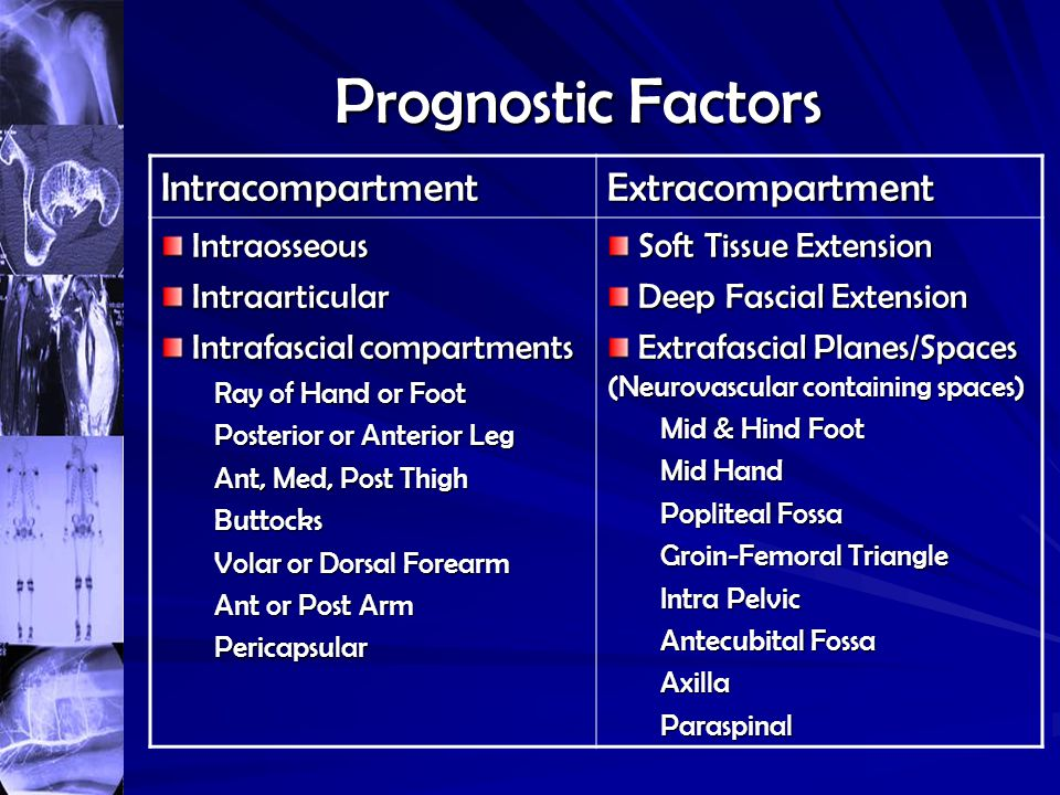 Prognostic Factors Intracompartment Extracompartment Intraosseous