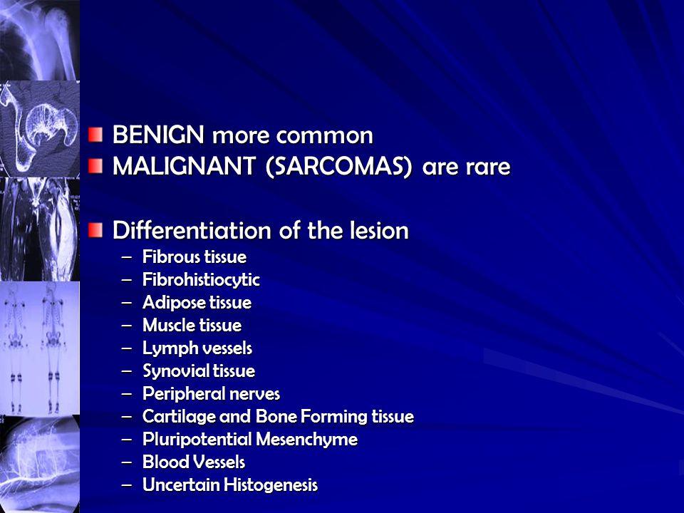 MALIGNANT (SARCOMAS) are rare Differentiation of the lesion