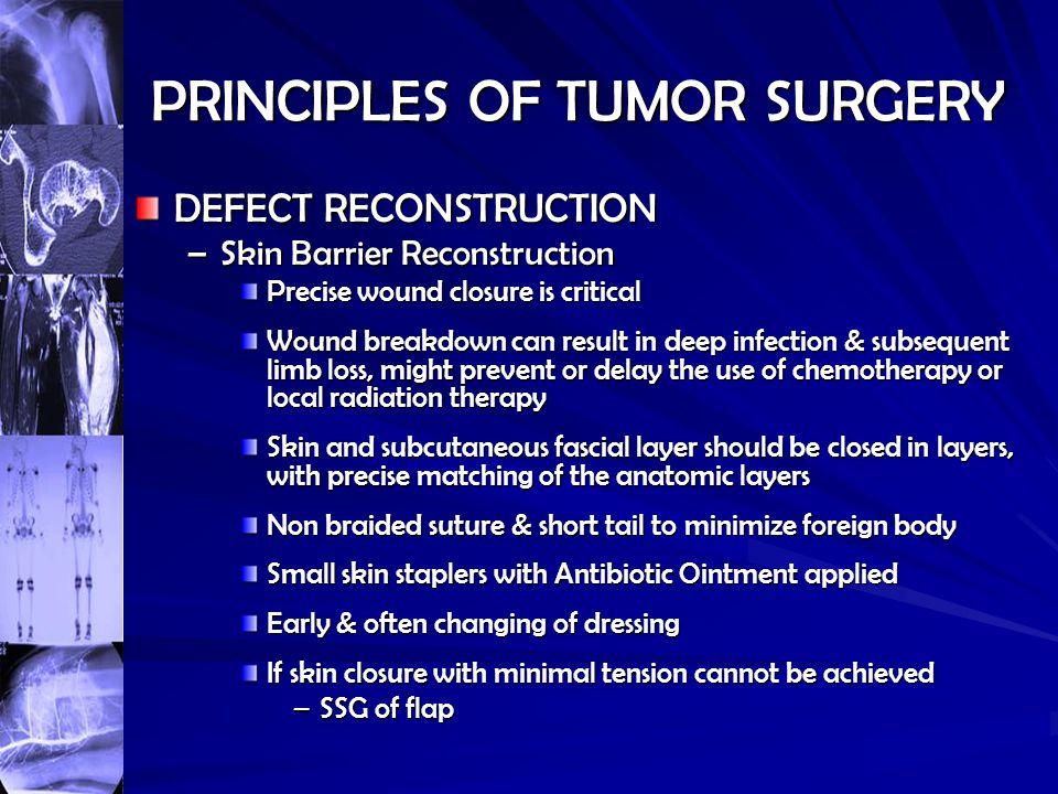 PRINCIPLES OF TUMOR SURGERY