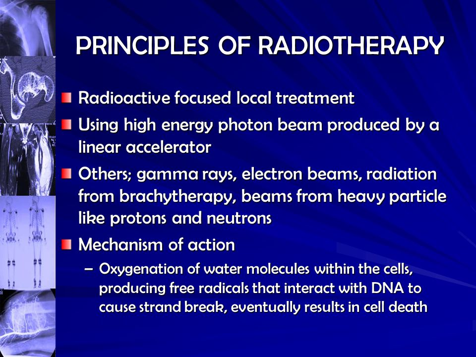 PRINCIPLES OF RADIOTHERAPY