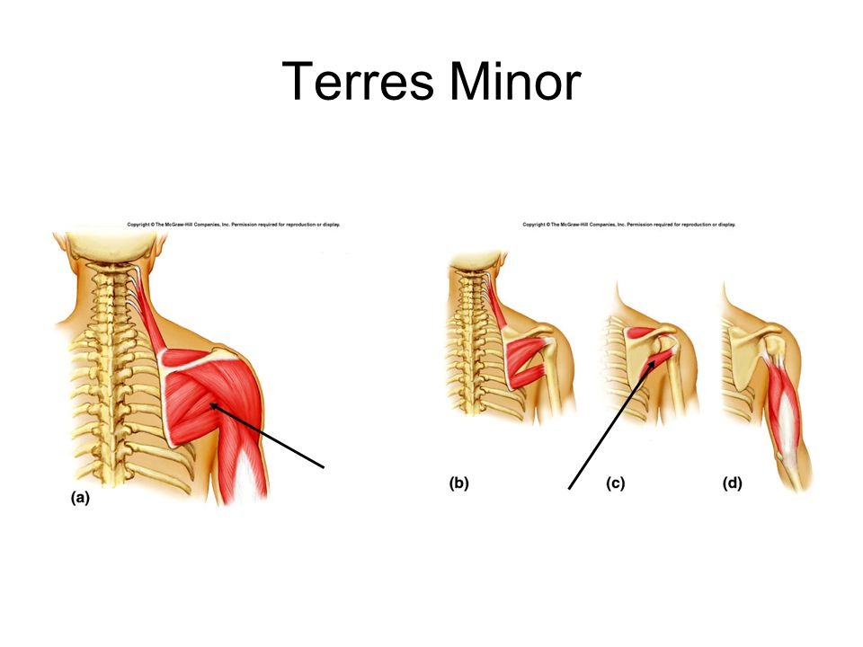 Terres Minor