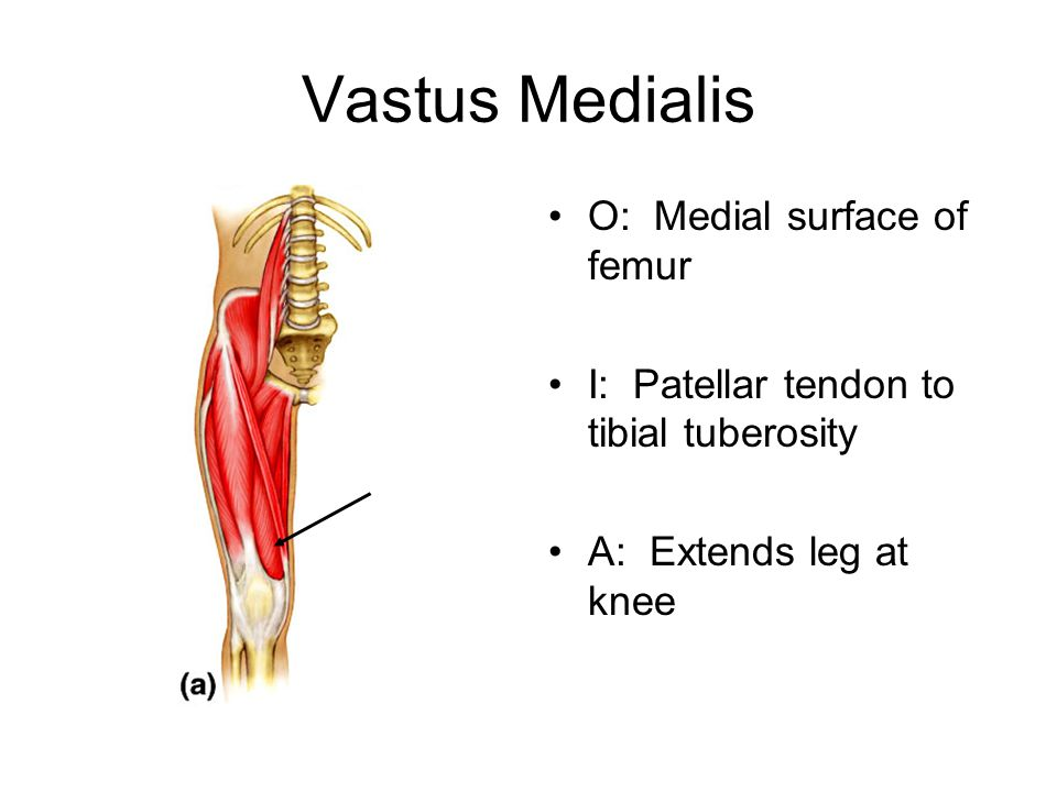Vastus Medialis O: Medial surface of femur