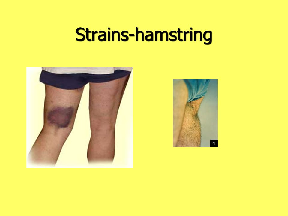 Strains-hamstring