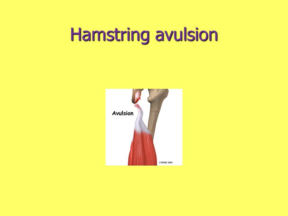 Hamstring avulsion