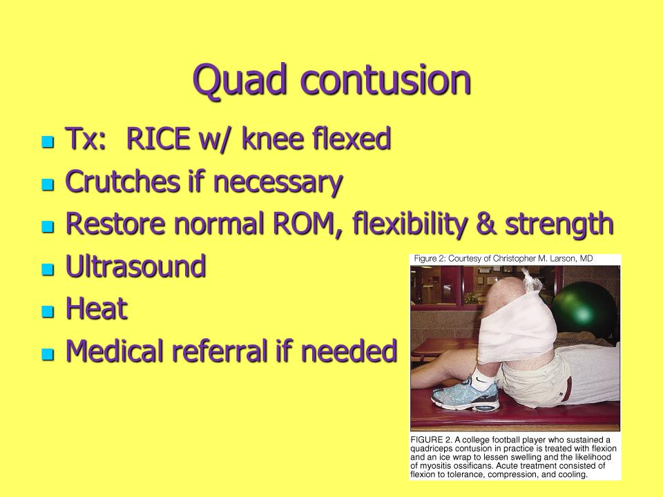 Quad contusion Tx: RICE w/ knee flexed Crutches if necessary