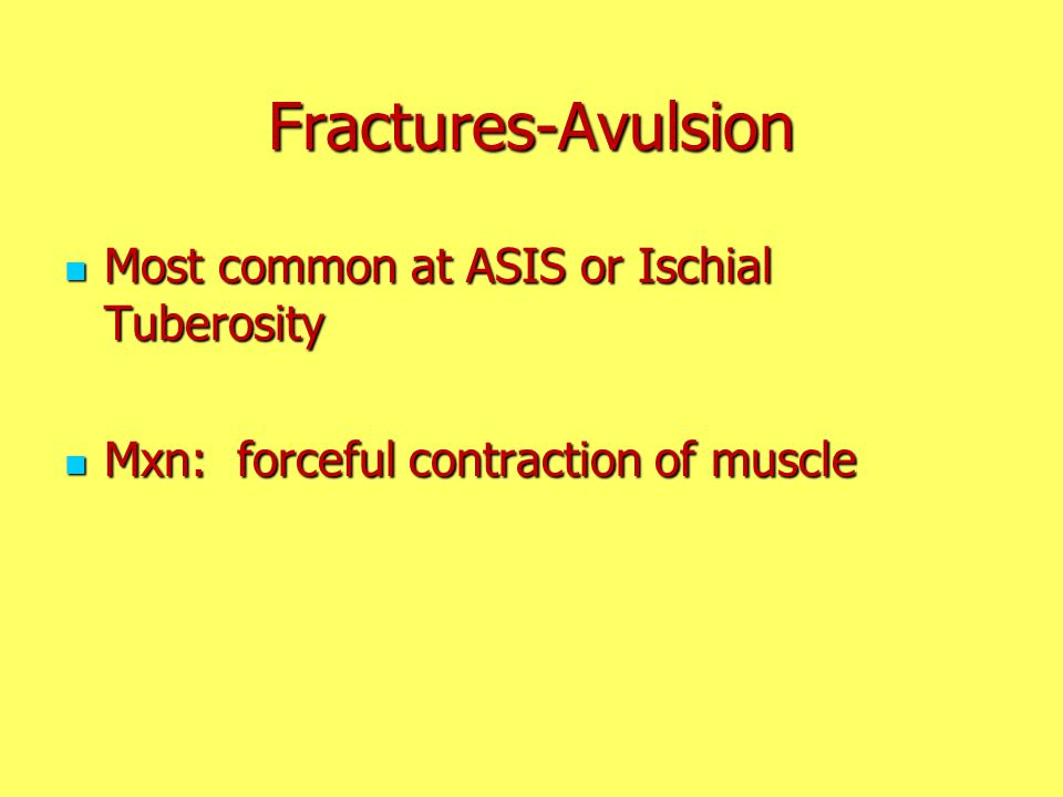 Fractures-Avulsion Most common at ASIS or Ischial Tuberosity