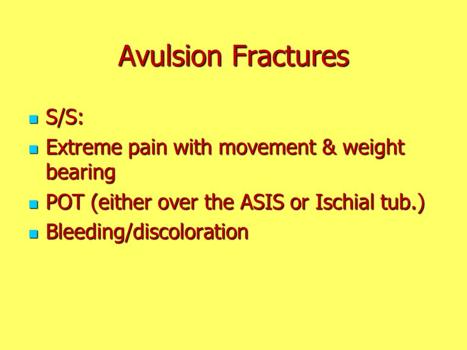 Avulsion Fractures S/S: Extreme pain with movement & weight bearing