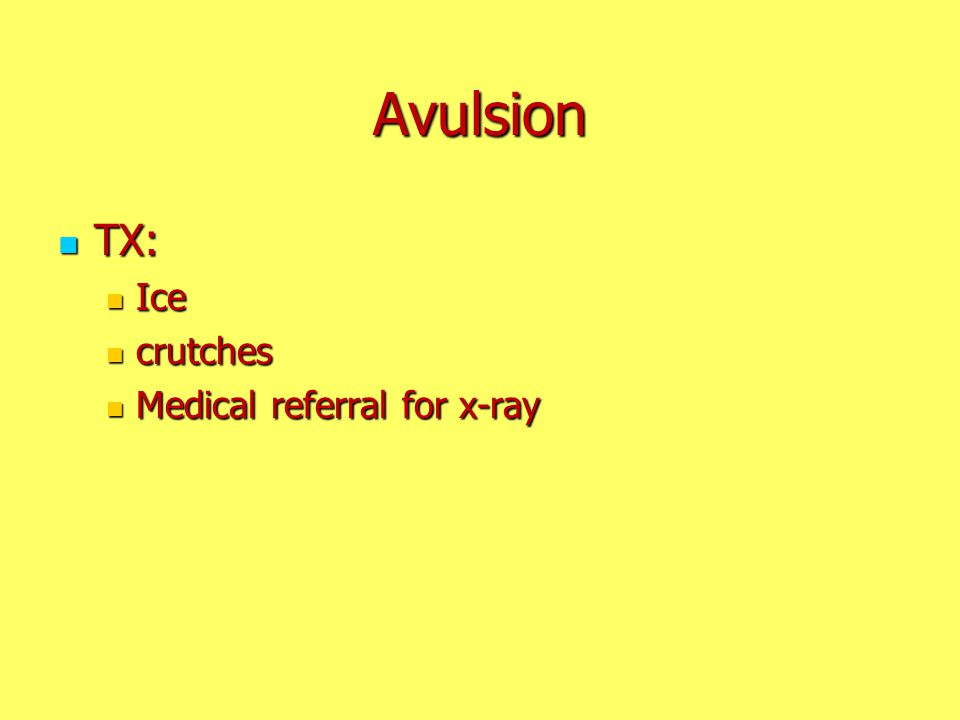 Avulsion TX: Ice crutches Medical referral for x-ray