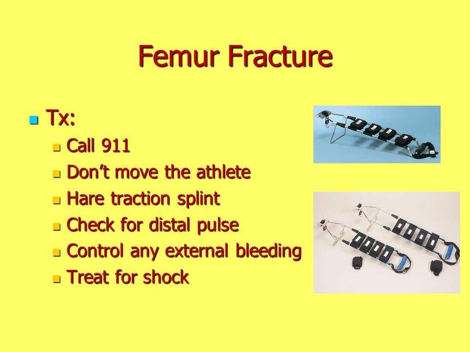 Femur Fracture Tx: Call 911 Don't move the athlete