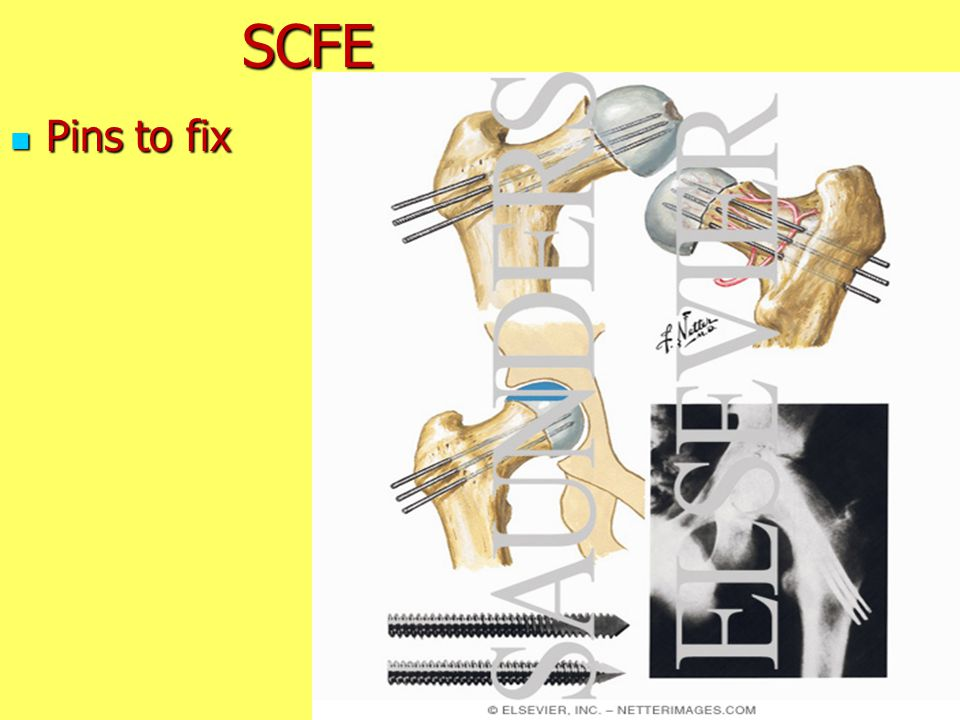 SCFE Pins to fix