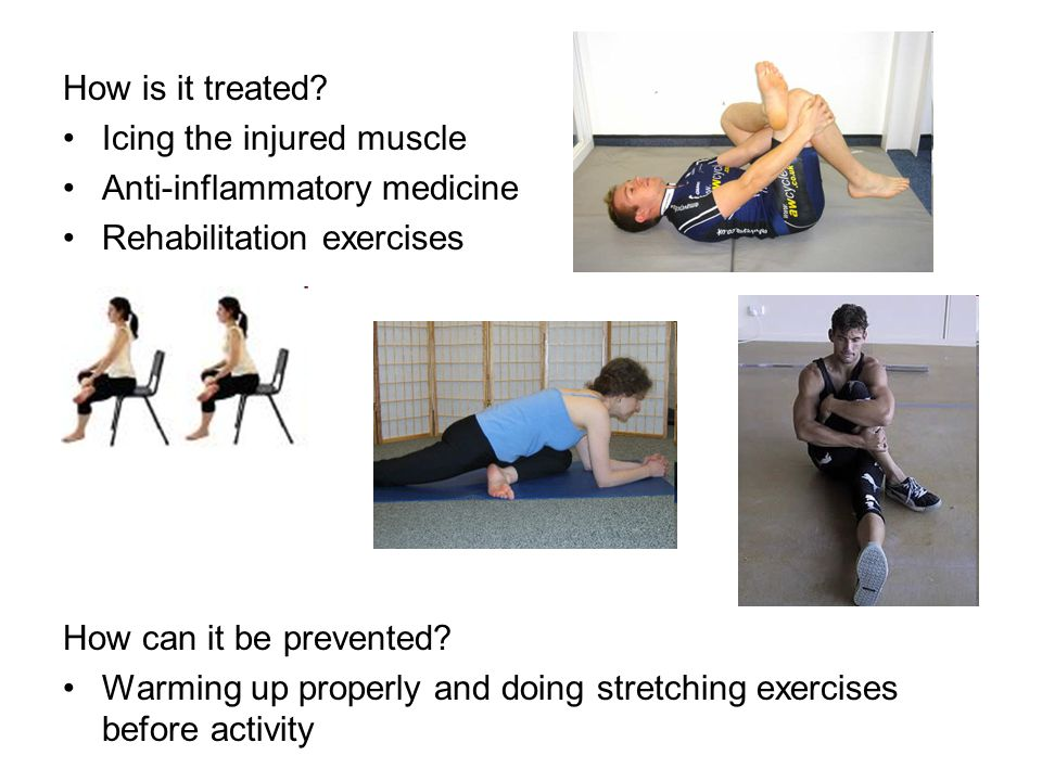 How is it treated Icing the injured muscle. Anti-inflammatory medicine. Rehabilitation exercises.