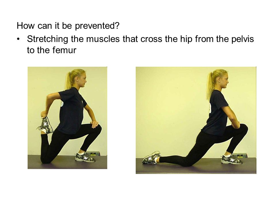 How can it be prevented Stretching the muscles that cross the hip from the pelvis to the femur