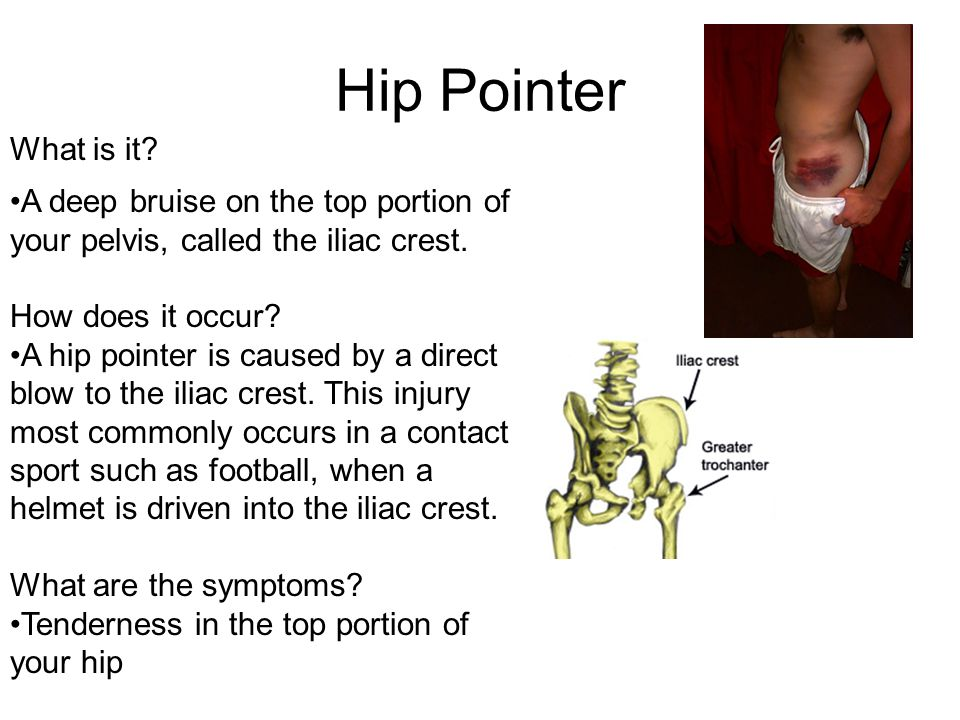 Hip Pointer What is it A deep bruise on the top portion of your pelvis, called the iliac crest. How does it occur