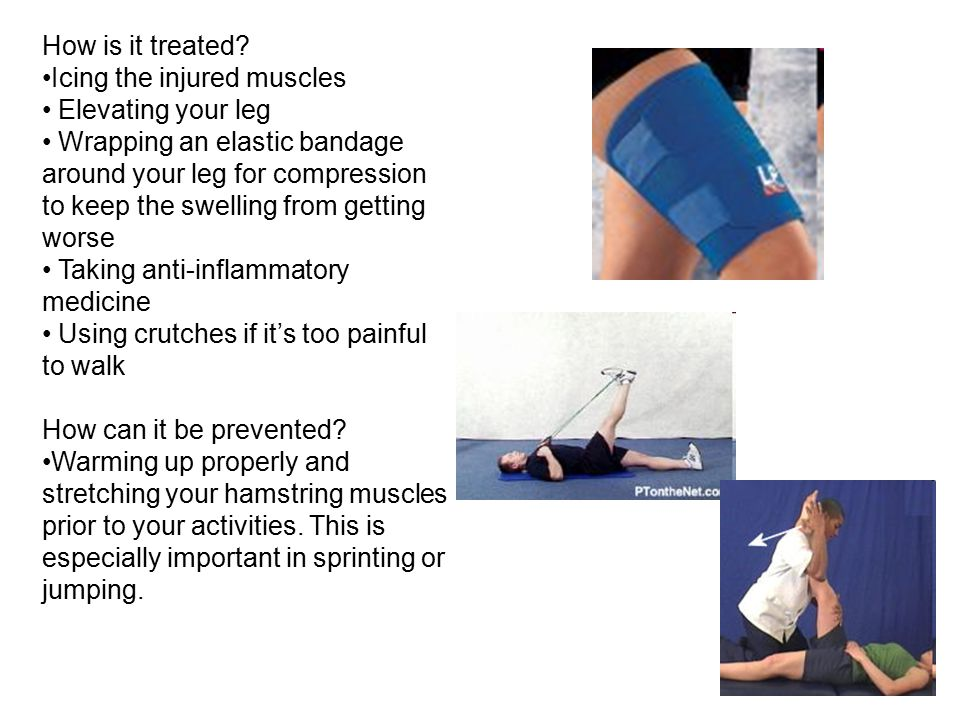 How is it treated Icing the injured muscles. Elevating your leg.
