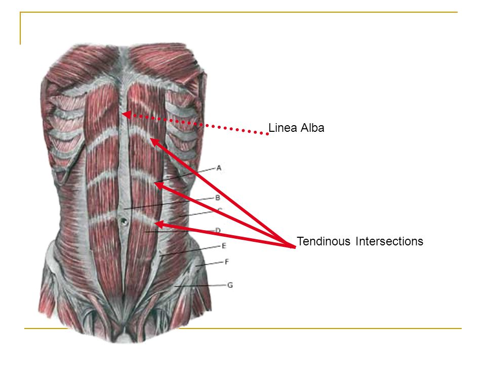 Linea Alba Tendinous Intersections