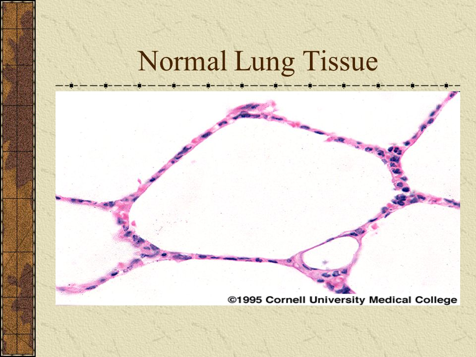Normal Lung Tissue
