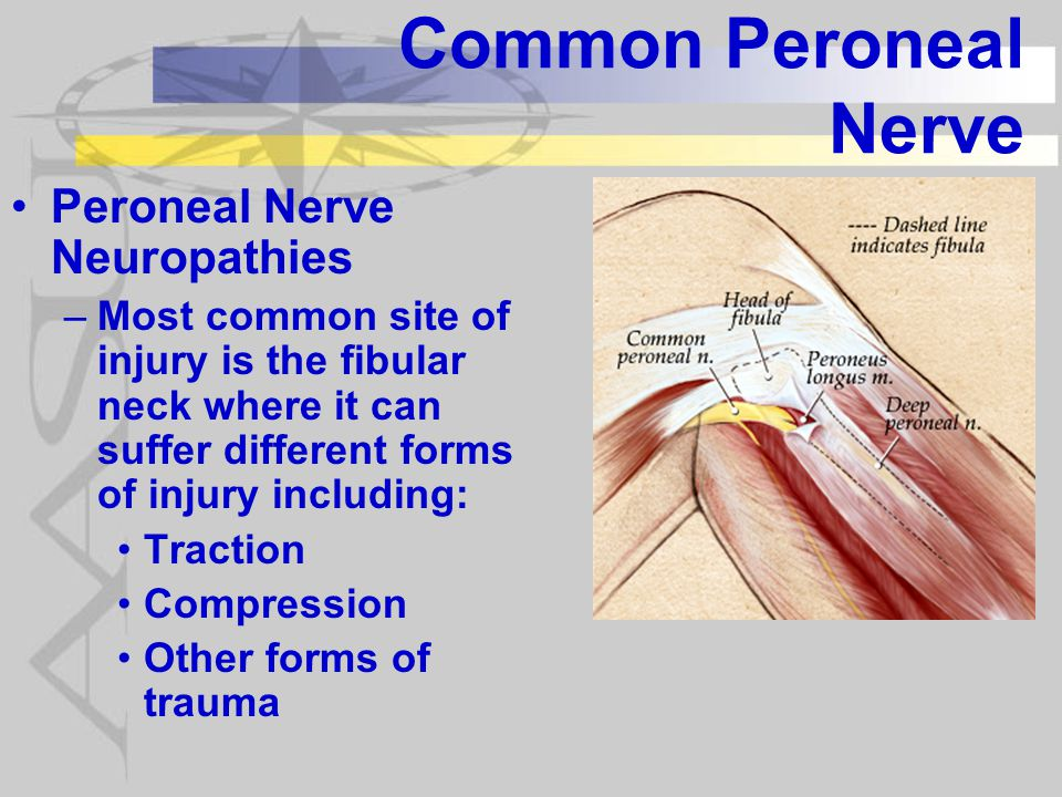 Common Peroneal Nerve Peroneal Nerve Neuropathies