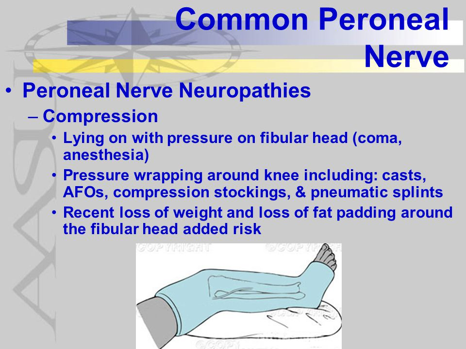 Common Peroneal Nerve Peroneal Nerve Neuropathies Compression