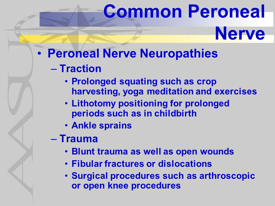 Common Peroneal Nerve Peroneal Nerve Neuropathies Traction Trauma