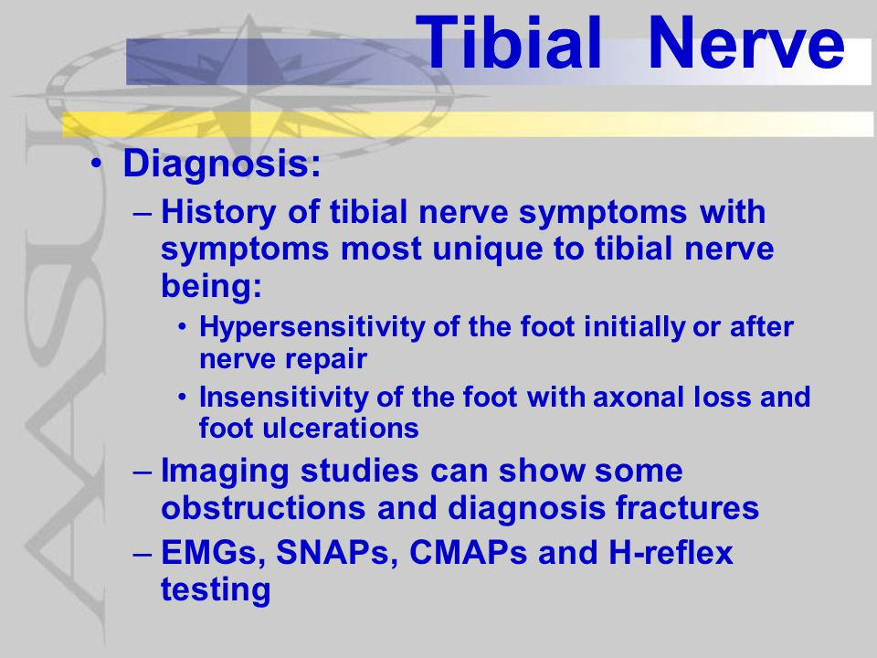 Tibial Nerve Diagnosis: